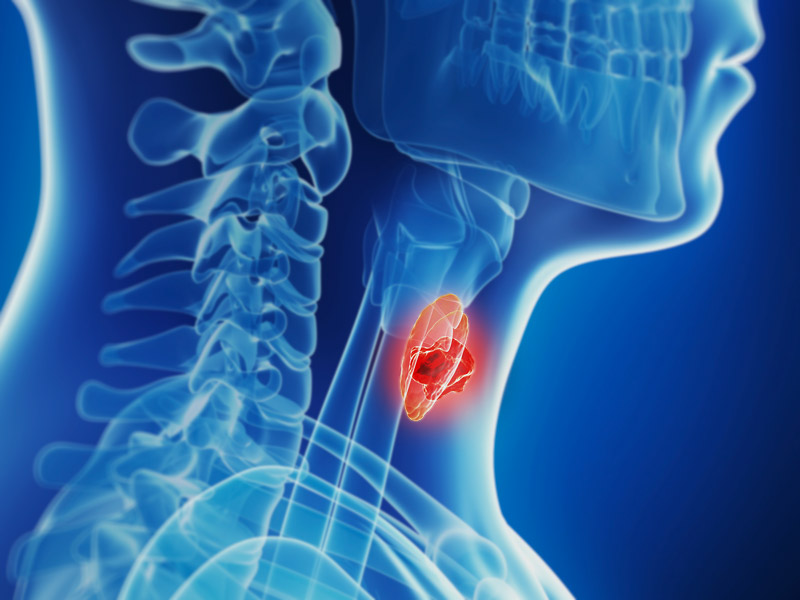 dt_140715_thyroid_cancer_800x600